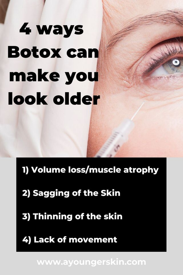 4 ways botox can make you look older