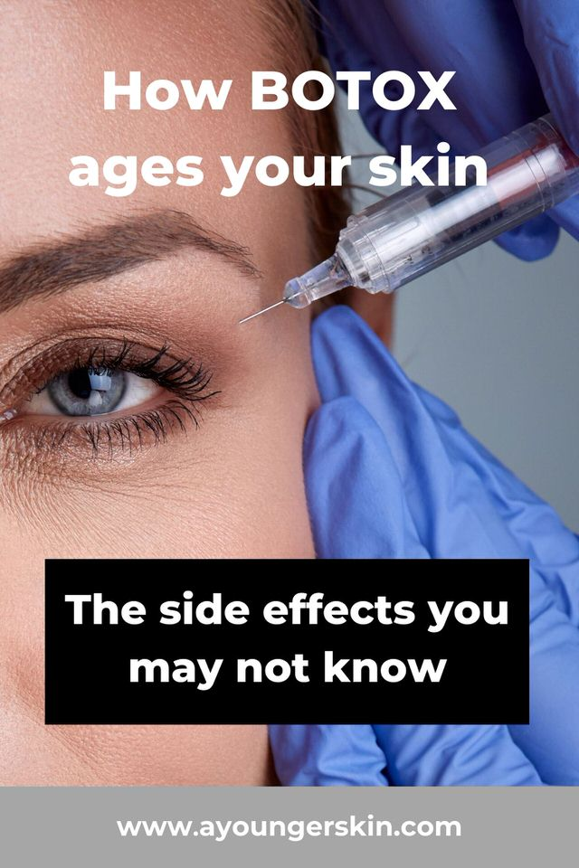 How Botox ages your skin - The side effects you may not know
