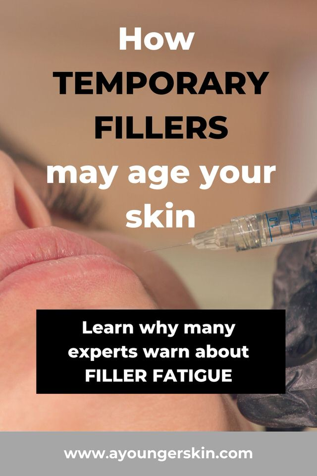 Filler fatigue - How temporary fillers can accelerate skin aging.