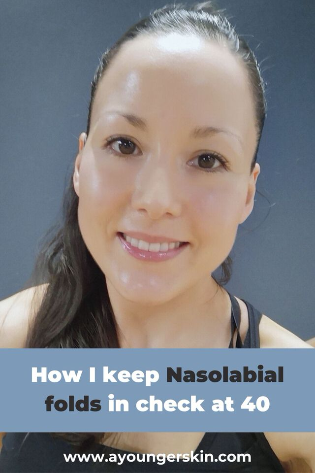 Treating nasolabial folds naturally at 40 years old