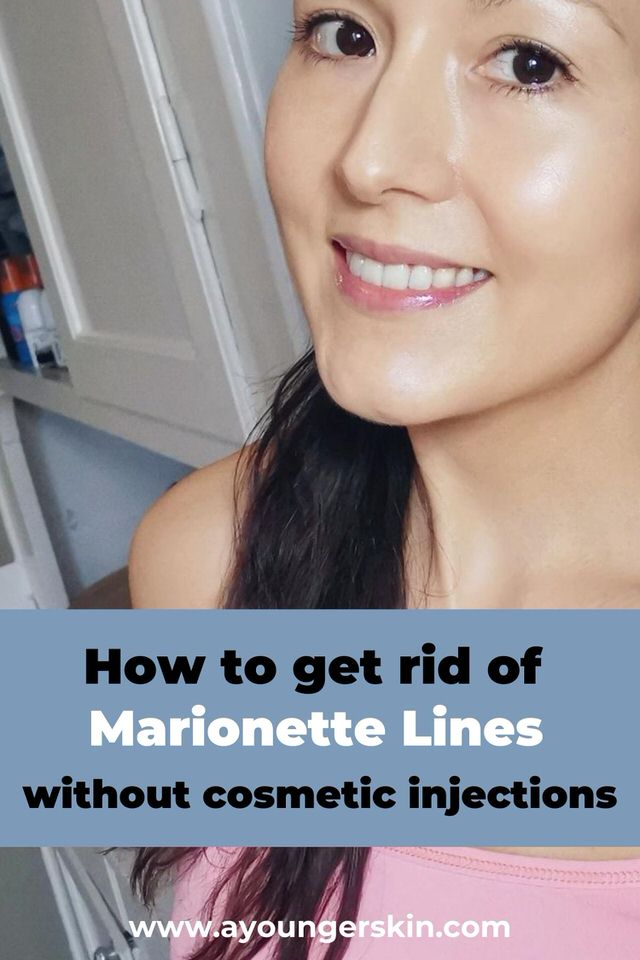 How to get rid of marionette lines without cosmetic injections