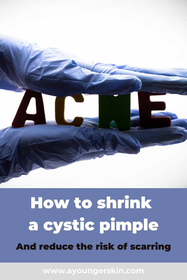 How to shrink cystic acne quickly, and prevent scarring.