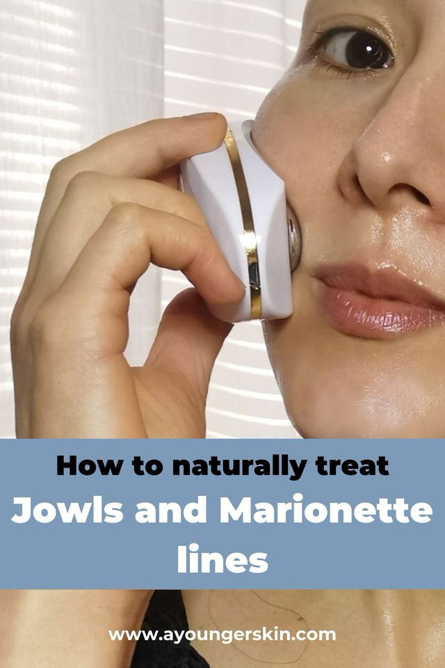 How to naturally treat jowls and marionette lines.
