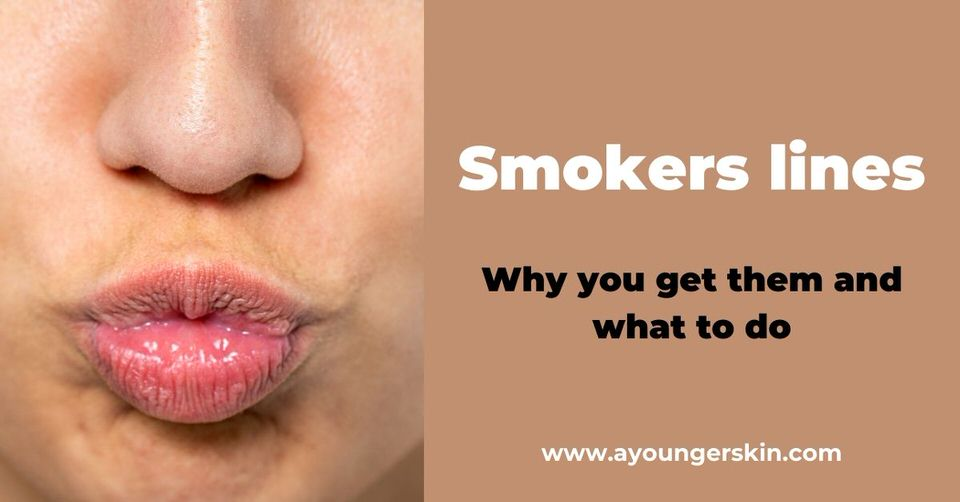 Smokers lines [why you get them and how to treat them]