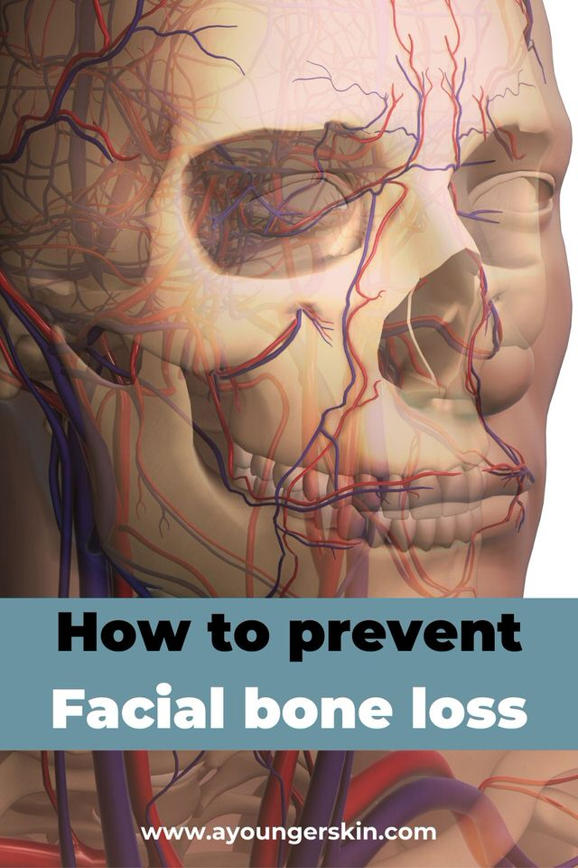 Facial bone loss and jaw bone loss - how to prevent it and how to treat it.
